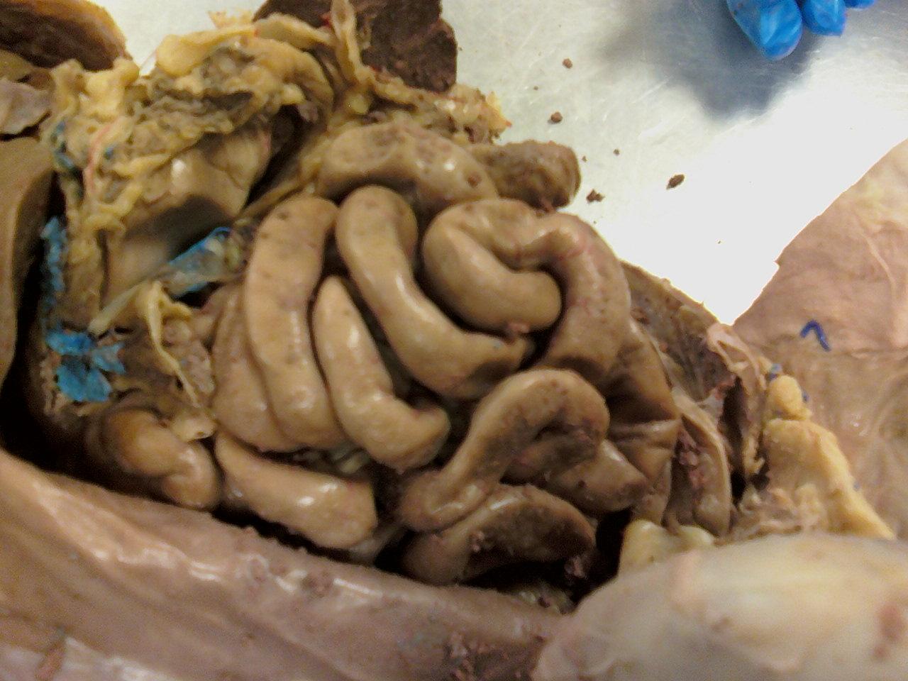 Real Human Intestine